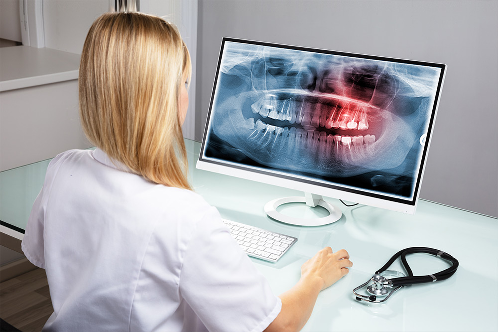 Röntgensoftware in der Praxis